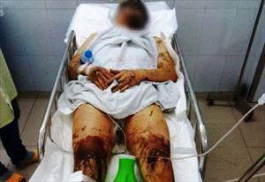 Quảng Ngãi: Bắt giữ kẻ lạ mặt tạt axit vào đôi nam nữ Việt Kiều về quê ăn Tết