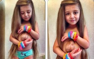 Nguyện cầu cho bé gái có tim ngoài lồng ngực chờ phẫu thuật
