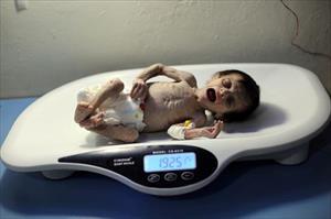 Bức ảnh em bé chết đói hé lộ tình trạng khủng hoảng lương thực ở Syria