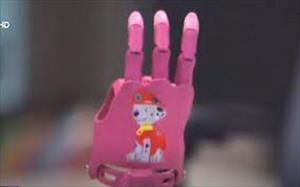 Nga: Công ty khởi nghiệp sản xuất chân tay giả hỗ trợ trẻ em khuyết tật