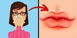 8 dấu hiệu của đôi môi tiết lộ tình trạng sức khoẻ của bạn