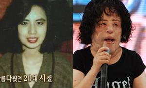 Ca sĩ mặt biến dạng vì dao kéo của Hàn Quốc qua đời ở tuổi 57