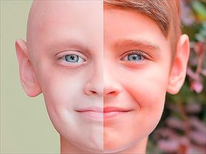 Nga biến vắc xin đậu mùa thành thuốc điều trị ung thư vú và ung thư não